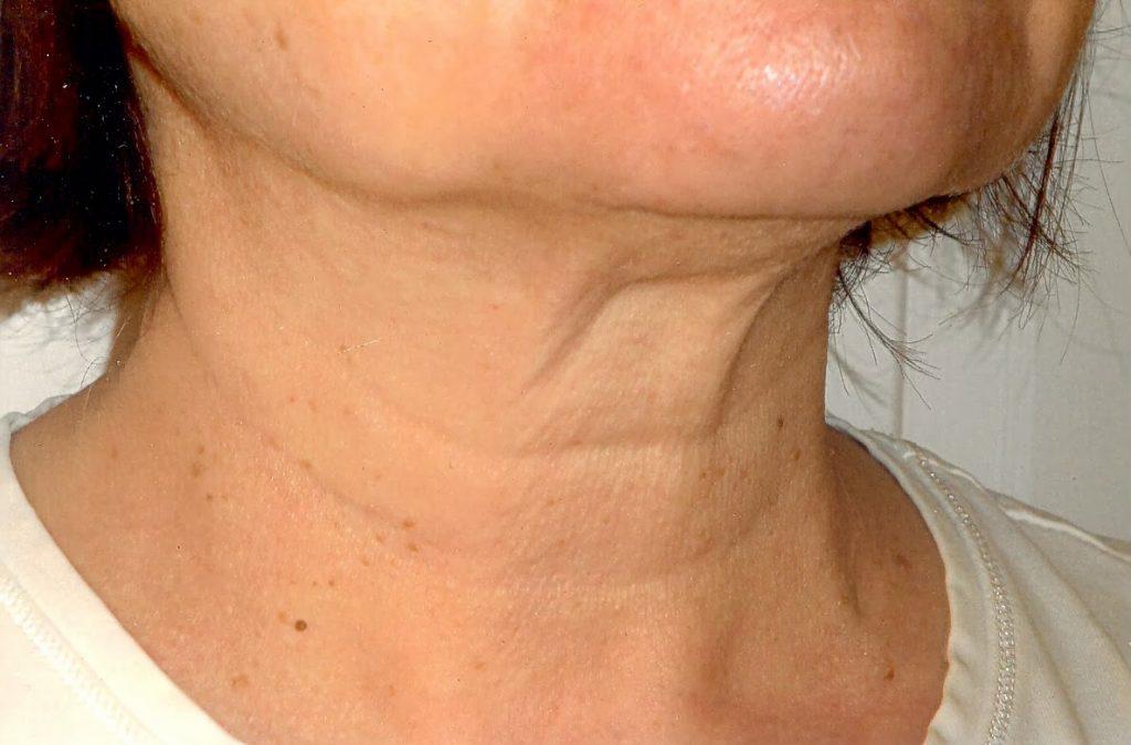 Como Combatir Las Arrugas del Cuello